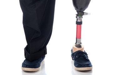 Orthopädietechnik Beinprothese